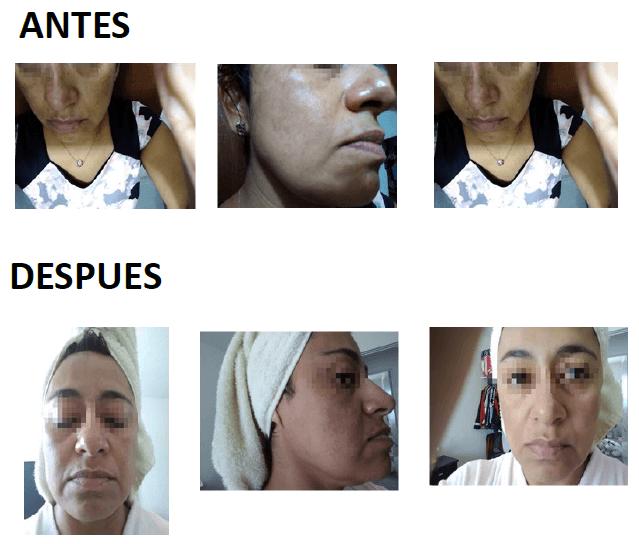 Beneficios de Melanil® Elimina manchas en la piel